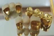 Proto-Dent Gabinet Stomatologiczny lek. stom. Khalil Nasser, ul. Ustrońska 3, Skoczów