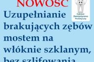 Grażyna Jaworowska Gabinet Stomatologiczno-Protetyczny - Mosty na włóknie szklanym bez szlifowania, ul. 3 Maja 16/6 , Gdynia